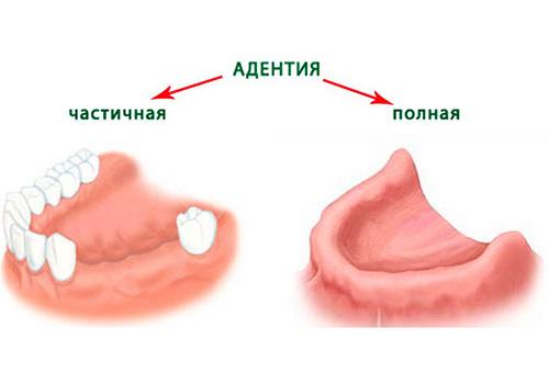 Когда начинают резаться зубки у младенцев: схема прорезывания, симптомы, отклонения