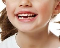 Смена зубов у девочки