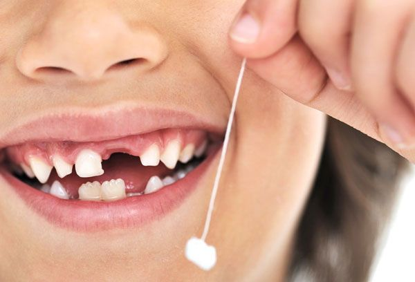 Молочные зубы у детей – схема выпадения и сроки процесса