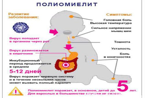 Признаки полиомиелита у ребенка