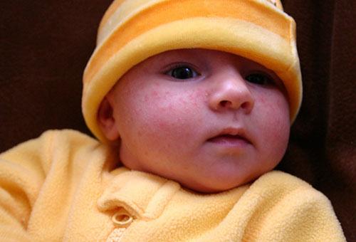 Сыпь на лице у новорожденного: причины, лечение