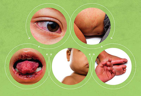 Kрасные пупырышки и волдыри на языке у ребенка- причины и методы лечения