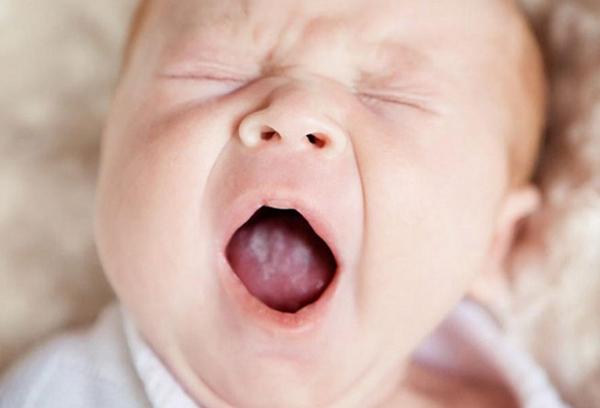 Молочница у новорожденного