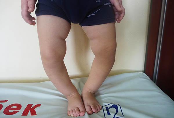 Ноги больного рахитом ребенка