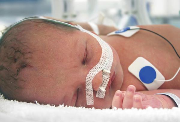 Новорожденный с последствиями родовой травмы
