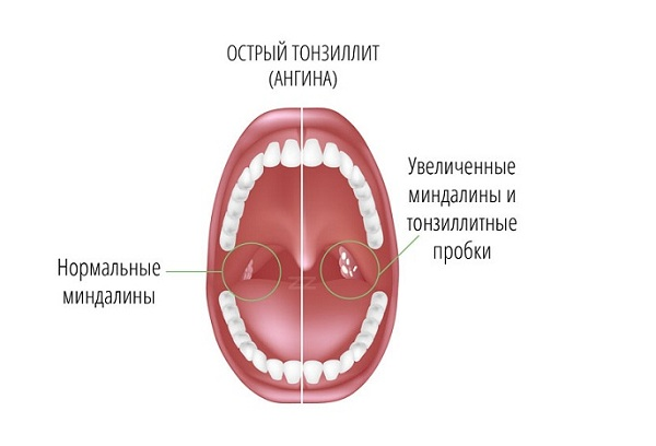 Тонзилит