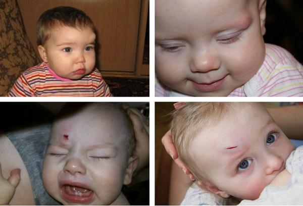 шишка на лбу у ребенка