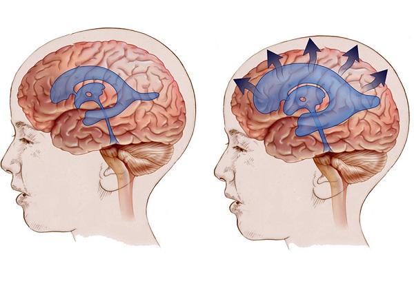 увеличенные желудочки в мозге и норма