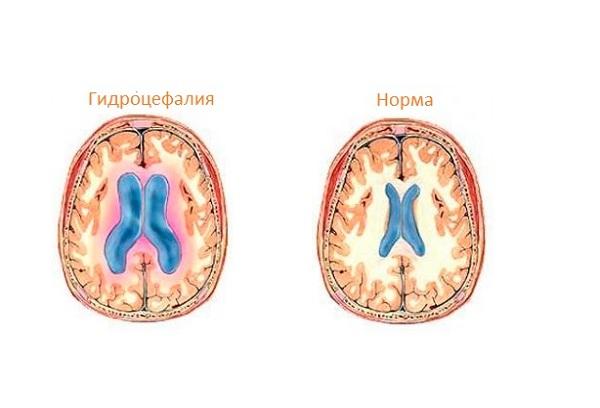 норма и патология развития головного мозга