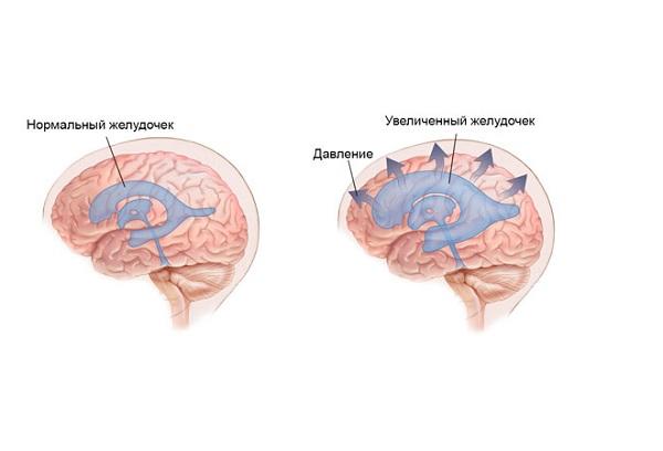 увеличение желудочков мозга