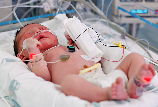 Недоношенный младенец с пневмонией