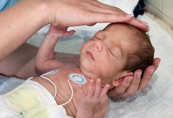 Недоношенный ребенок в больнице