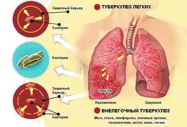 Схема развития туберкулеза