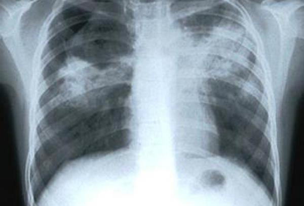 Признаки туберкулеза в легких