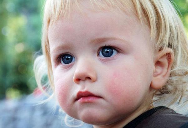 Красные щечки у малыша