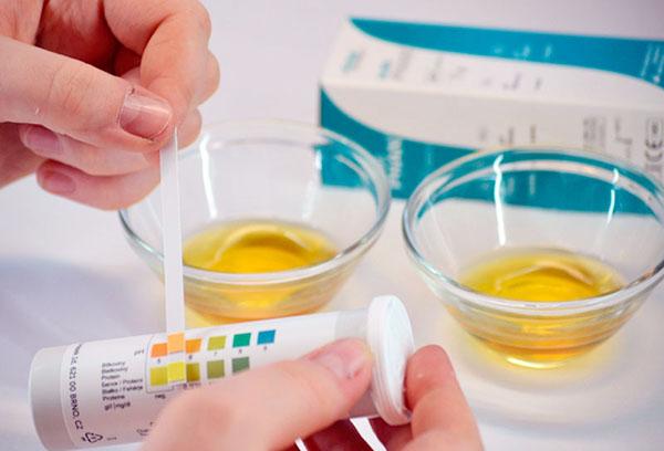 Тест на ацетон в моче