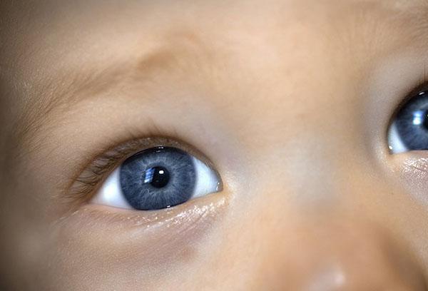 Синяки по глазами у грудничка