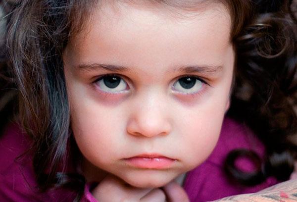 Синяки под глазами у девочки
