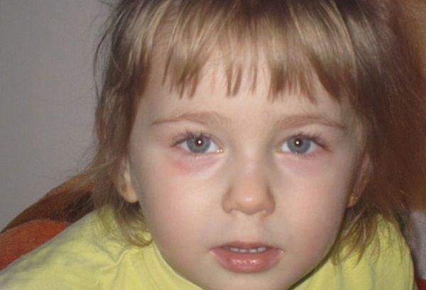 Покраснение глаз у девочки