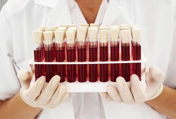 Пробирки лабораторные с кровью