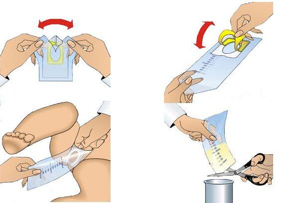 Использование мочеприемника