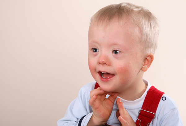 Ребенок после лечения синдрома короткой шеи