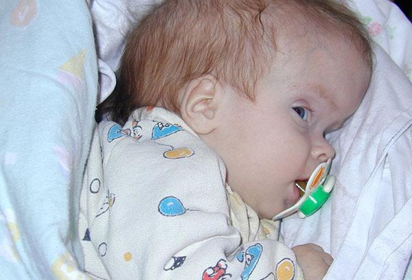 Гидроцефалия у младенца