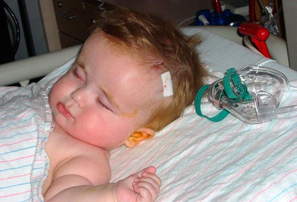 Лечение гидроцефалии у ребенка