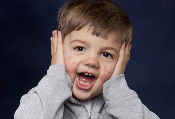 Пятна на лице у ребенка