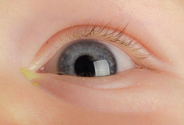 Гноится глаз у новорожденного