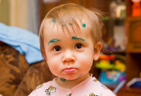 Следы от зеленки у ребенка с ветрянкой
