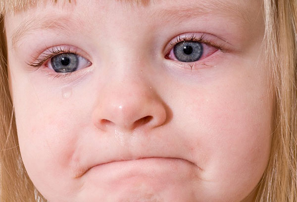 Красные глаза у девочки