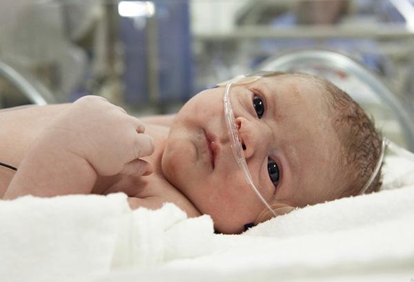 Новорожденный в реанимации