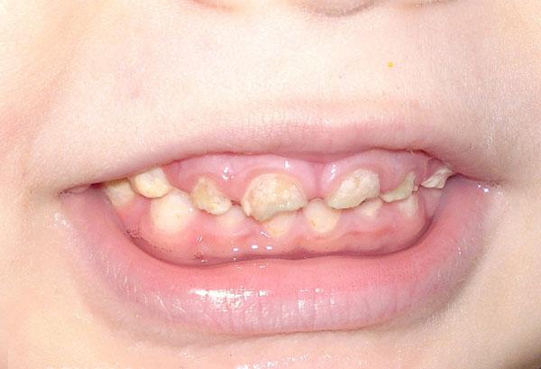 Нездоровые зубы у годовалого ребенка