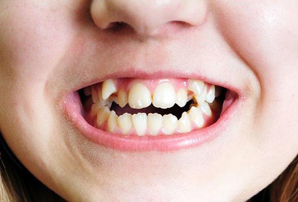 Неправильно растут постоянные зубы